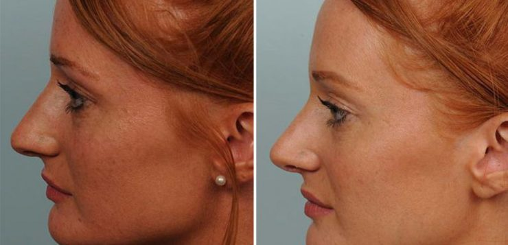 Une meilleure connaissance de la rhinoplastie, la chirurgie du nez