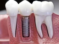 Implant dentaire : pourquoi est-ce aussi cher ?